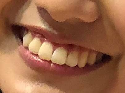 豊田ルナ 歯並び