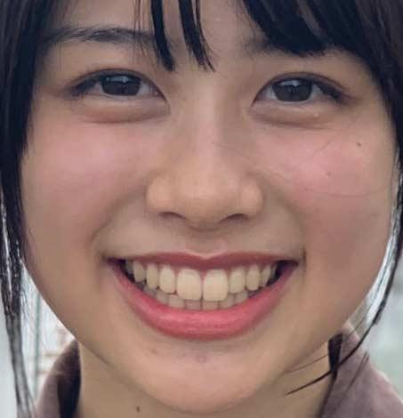 脇田穂乃香 前歯