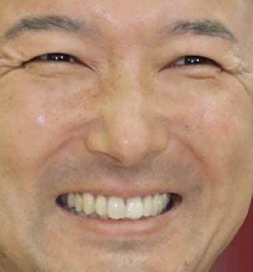 山本太郎 歯並び