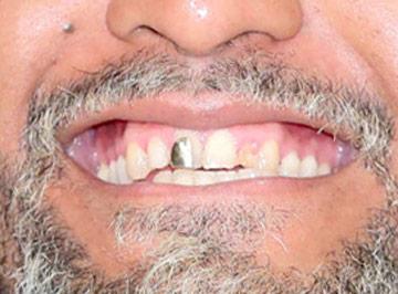 中島イシレリ 金歯